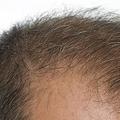 英国の科学者がこのほど、食事制限により髪の毛が伸びることを証明した。関連研究レポートの概要が、国際的に有名な学術誌「Cell」の姉妹紙「Cell Reports」で発表された。