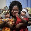 分離手術を終えたエルビナちゃんとプレフィーナちゃんを抱き抱える母親。バンビーノ・ジェズ小児科病院提供(撮影日不明、2020年7月8日公開)。(c)AFP PHOTO / BAMBINO GESU HOSPITAL / HANDOUT