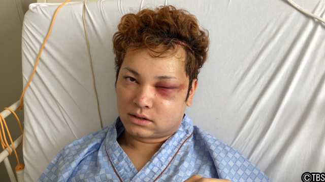 [画像] 10万人1人の難病で顔面崩壊したイケメン俳優の現在は?『爆報!THE フライデー』