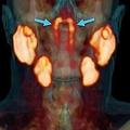 人間の体に「未知の臓器」を発見 定義次第では今後も新しい臓器見つかる?