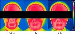 マスク着用前と着用後の肌温度の変化(アモーレパシフィック技術研究院提供)=(聯合ニュース)≪転載・転用禁止≫