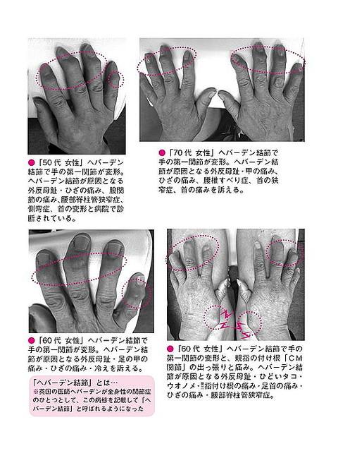 ヘバーデン結節とは、手の指の第一関節(爪のすぐ下の関節)の背面が「太く変形」したり、背面に「コブのような骨の隆起(結節)」が見られたりする病気のこと。