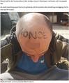 「性犯罪者」と頭に刺青を彫られた男性(画像は『Mirror 2020年11月28日付「Worker woke to find word 'nonce' tattooed on forehead as two arrested for GBH」』のスクリーンショット)