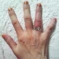 指輪が抜けない!ピンチを救ってくれたのは消防署
