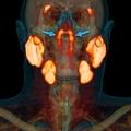 人の喉に未知の臓器を発見、オランダ研...