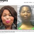 奪った現金で美容整形手術を受けていた女(画像は『New York Post 2021年5月13日付Iconic Facce gets 15 years for robbing bank to finance plastic surgery」(Gulfport Police Dept.)』のスクリーンショット)
