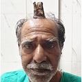頭にユニコーンのような角を持つ74歳男性(画像は『The Sun 2019年9月18日付「LIFE OF HELL Terrifying four-inch 'devil horn' growing from the top of man's head is finally removed by doctors」(Credit: SWNS:SOUTH WEST NEWS SERVICE)』のスクリーンショット)