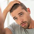 「ストレス性の白髪」元に戻る?