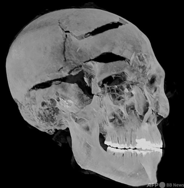 [画像] 3600年前のファラオの死因、先端技術でついに解明 エジプト